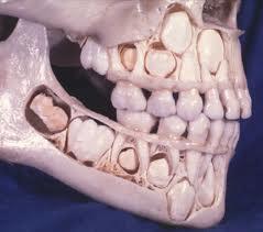 Seal the Teeth